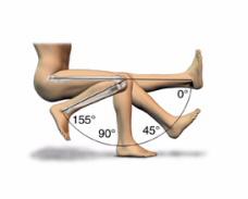 Протез колена - сгиб в суставе до 155 градусов
