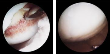 Артроскопное исследование абразии на медиальном фемуркондиле и контрольная артроскопия