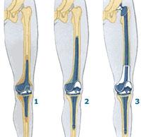репротезирование коленного сустава