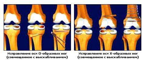 Исправление оси искривленных ног