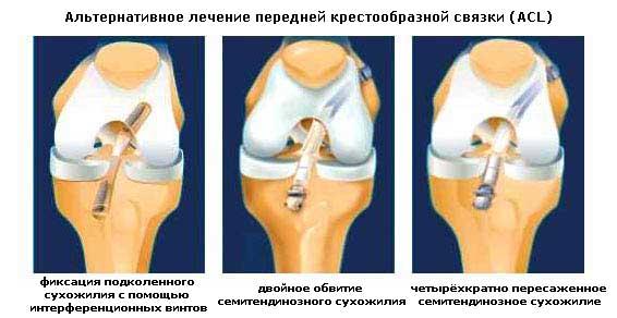 Лечение передней крестообразной связки